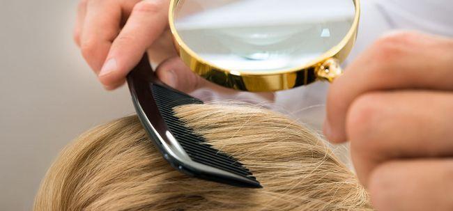 10 Nebenwirkungen von Haartransplantation sollten Sie sich bewusst sein Foto