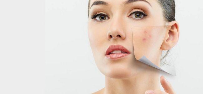 10 einfache Heilmittel für trockene Haut Behandlung von Akne Foto