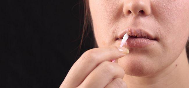 11 Ways Rid von Lippenherpes Übernachtung Get Foto
