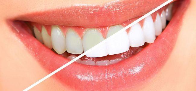 13 einfache Möglichkeiten, weiße Zähne zu bekommen Übernachtung Foto