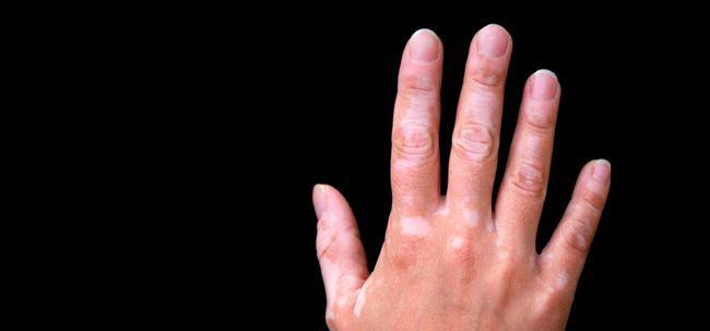 15 Natürliche Wege Rid von weißen Flecken auf Haut zu bekommen Foto