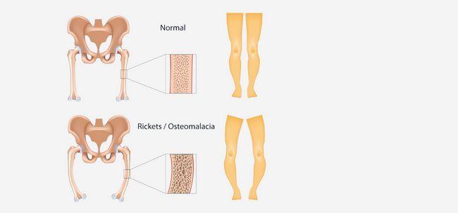 17 Symptome und Ursachen von 3 Ricket sollten Sie sich bewusst sein, Foto