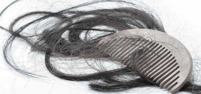 3 einfache Möglichkeiten, übermäßigen Haarausfall zu bekämpfen? Foto
