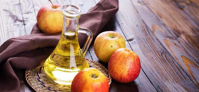3 einfache Möglichkeiten, Apfelessig verwenden Nierensteine zu behandeln Foto