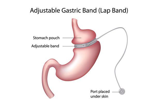 Magenband Operation