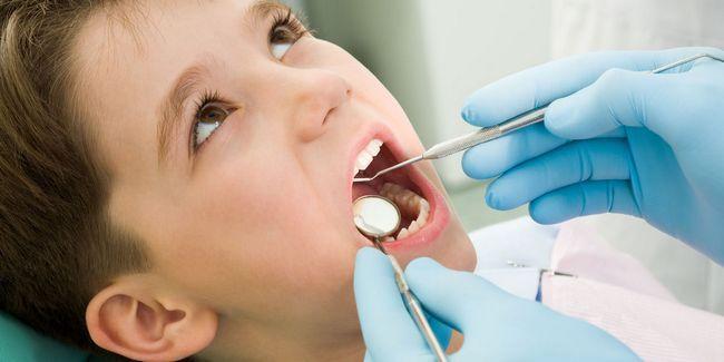 5 Gemeinsame Zahnprobleme bei Kindern Foto