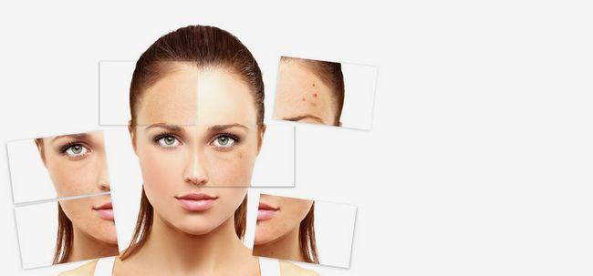 5 häufigsten Hautprobleme Sie Gesicht während Summers und deren Lösungen Foto