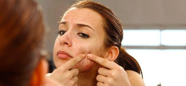 5 einfache, aber sehr effektive Akne Vulgaris Behandlungen Foto