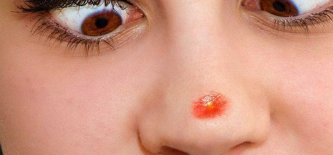 5 einfache Möglichkeiten, Pickel zu entfernen auf der Nase Foto