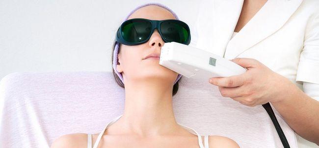 5 Arten von Laser-Hautbehandlungen und ihre Vorteile Foto