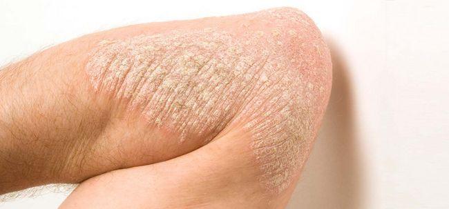 5 Arten von Psoriasis und ihre Behandlungen Foto
