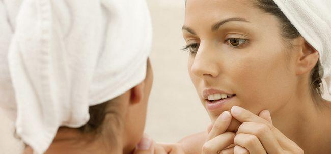 9 Wege, zum sich von Pickel auf Mund und Lippen - Act Now Foto