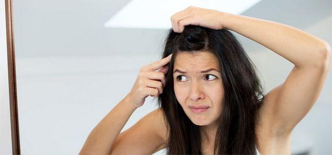 Kann Schuppen Haarausfall verursachen? Foto