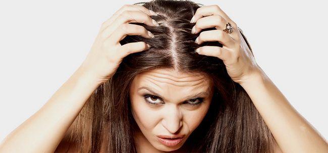Fettige Kopfhaut und Spröde Ends - Wie behandeln? Foto