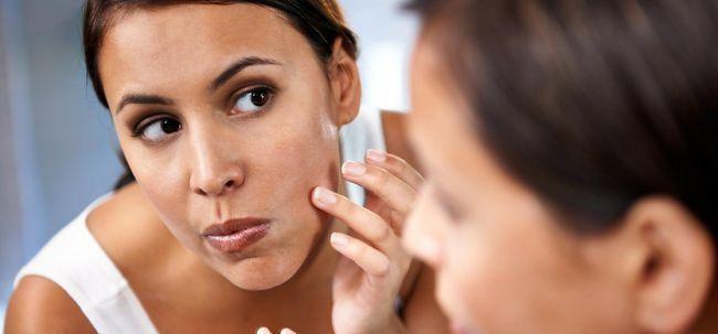 Ganzheitliche Behandlung Pimple In Bangalore - Was, Wo und Warum Foto