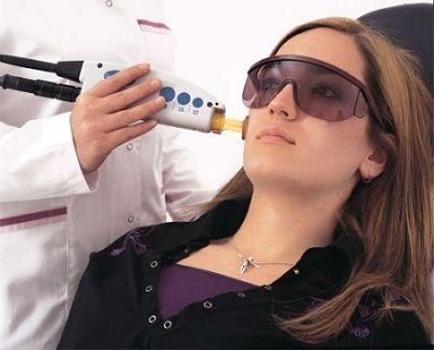 Laser-Behandlung für Gesicht