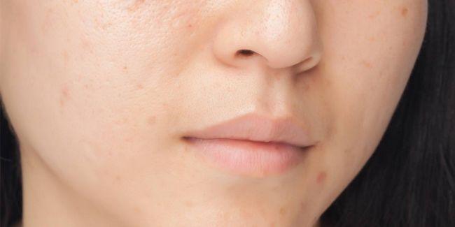 Wie Besan Gesicht Packs können eine Vielzahl von gemeinsamen Hautprobleme lösen Foto