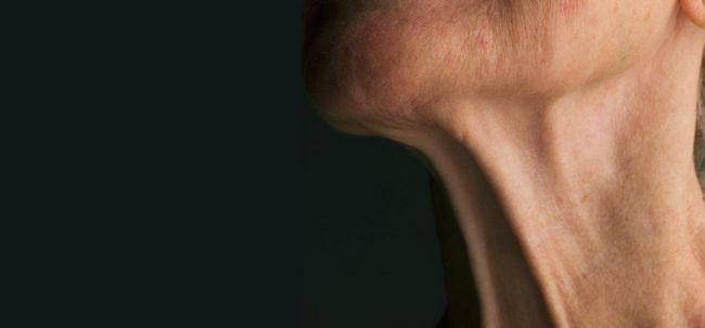 Wie Hals Falten zu verhindern? Foto