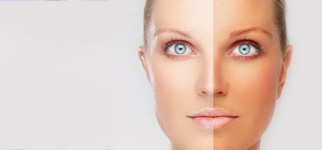 Wie Sie Ihre helle Haut vor Sonnenschäden zu schützen? Foto