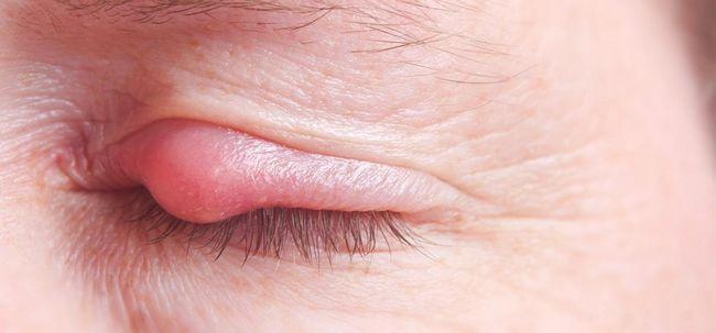 Wie Pickel auf den Augenlidern entfernen? Foto