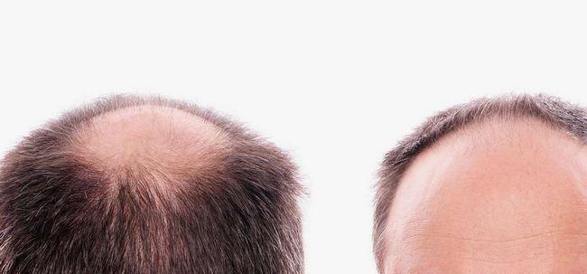 Wie zu bekämpfen Haarausfall bei Patches? Foto