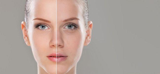 Wie unebenen Hautton zu behandeln? Foto