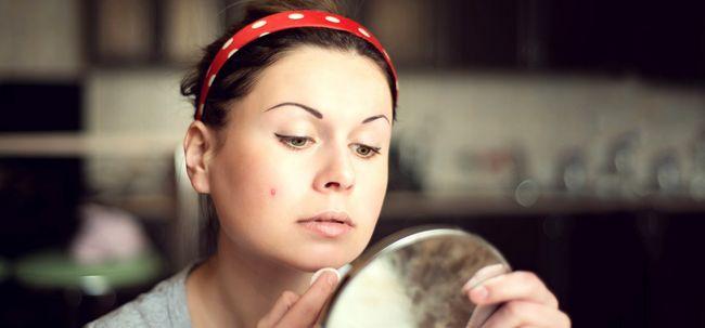 Ist Sesamöl gut für Akne? Foto