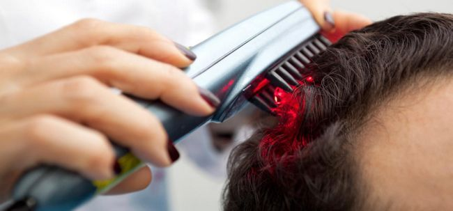 Laser-Therapie: Eine neue Art und Weise Haarausfall zu kämpfen Foto