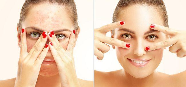 Make-up-Allergie- Dinge sollten Sie sich bewusst sein Foto