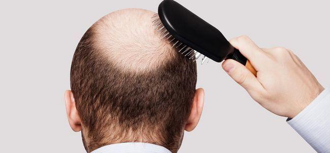 Hair Growth Mesotherapie Für - funktioniert es? Foto