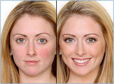 Mineral Make-up vor und nach