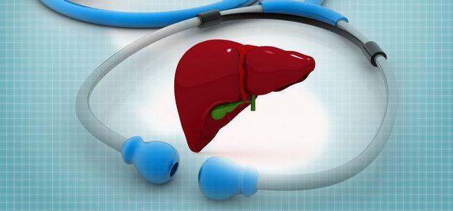 Steine in der Leber - Ursachen, Symptome, Behandlung und Operation Foto