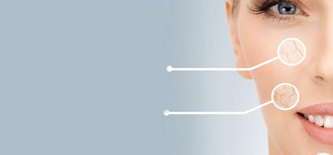 Top 10 Symptome trockener Haut sollten Sie sich bewusst sein, Foto