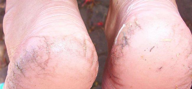 Was sind die Ursachen rissige Fersen? Foto