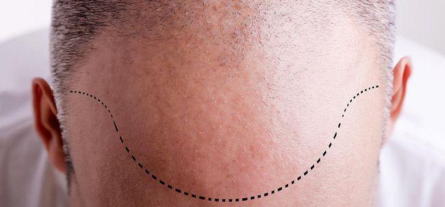 Was ist Haartransplantationen und was sind ihre Vorteile? Foto