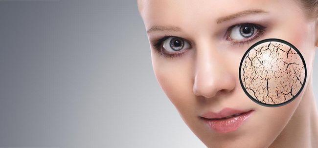 Warum trockene Haut Patches und Risse Sie Formular? Foto